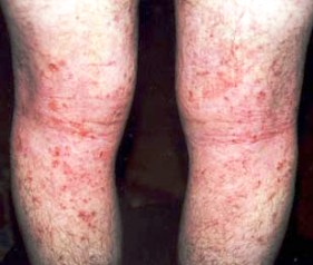 Neurodermatitis symptoms