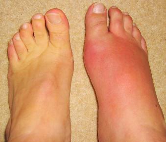 Gout photo