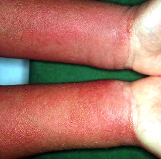 Allergic Dermatitis: Photos, Symptoms and Treatments