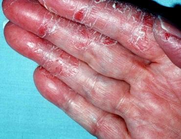 how to describe eczema rash