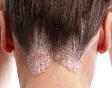 Seborrheic dermatitis: photos, symptoms and treatment