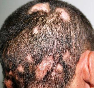 traitement psoriasis du cuir chevelu
