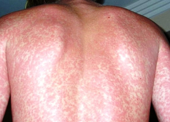 Rash with mononucleosis photo