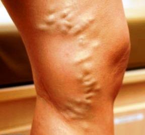 varicose picioare vevi